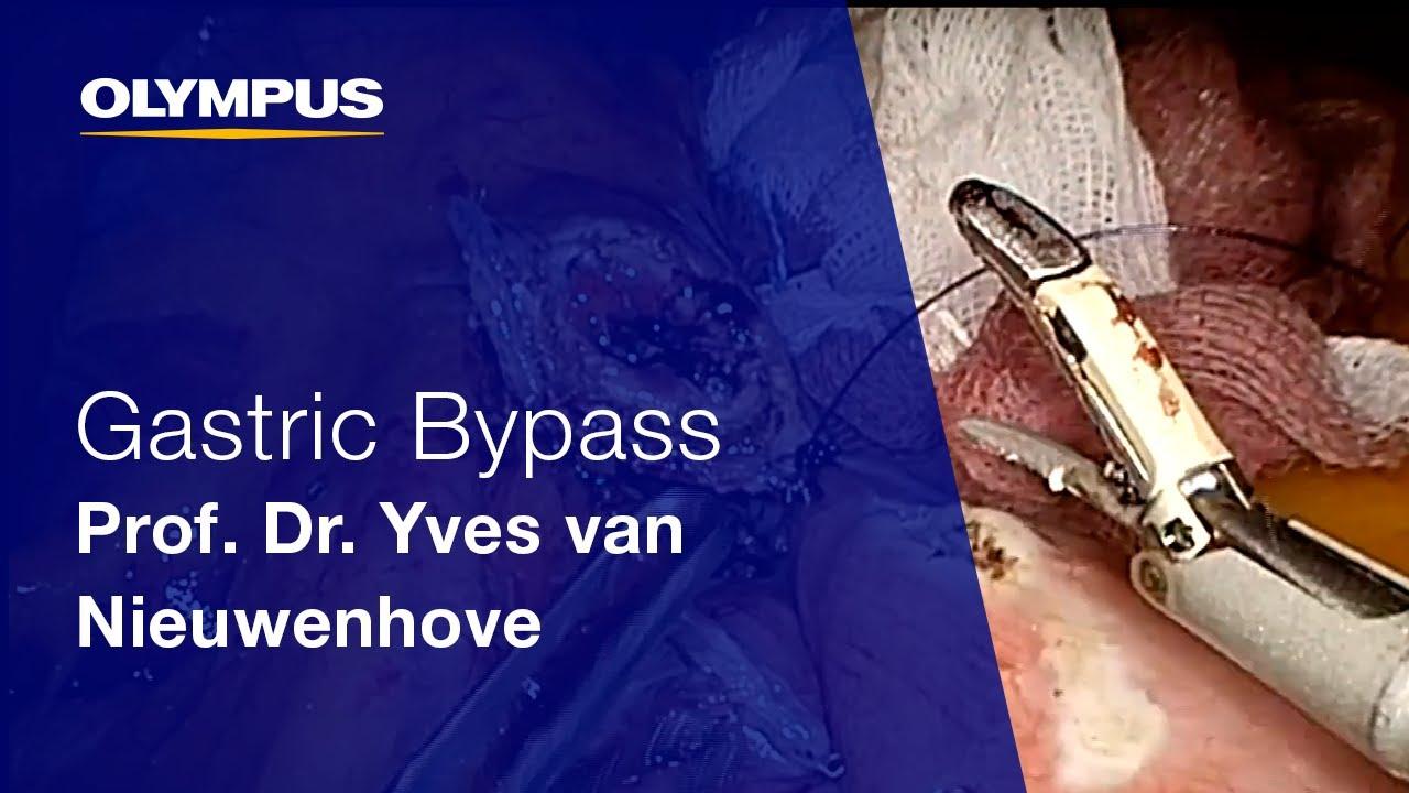 THUNDERBEAT | Hybrid Energy | General Surgery | Olympus