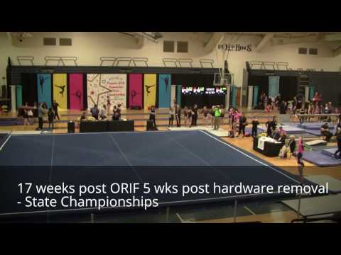 Lisfranc recovery and return to competition in an artistic gymnast
