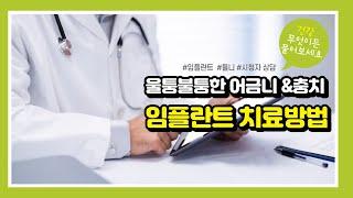 [건강매거진] 울퉁불퉁한 어금니쪽 잇몸과 충치, 임플란…