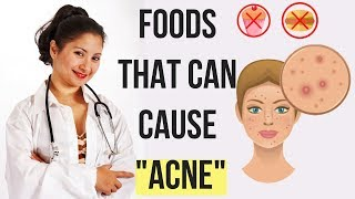 Top 7 Foods That Can Cause Acne : You Need to Avoid for Clearer Skin