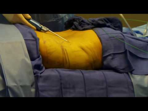 Laser Lipo Part 5 of 6