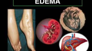 Cardíaca edema enfermedad debido a