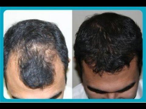 remedio para ajudar crescer cabelo