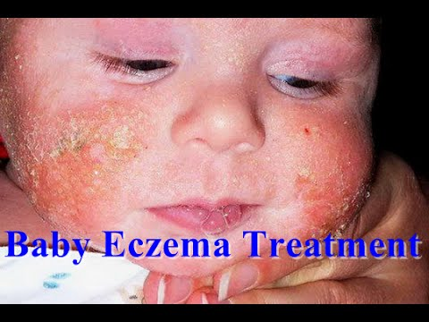 How to Treat Eczema on Face : Baby Eczema Treatment