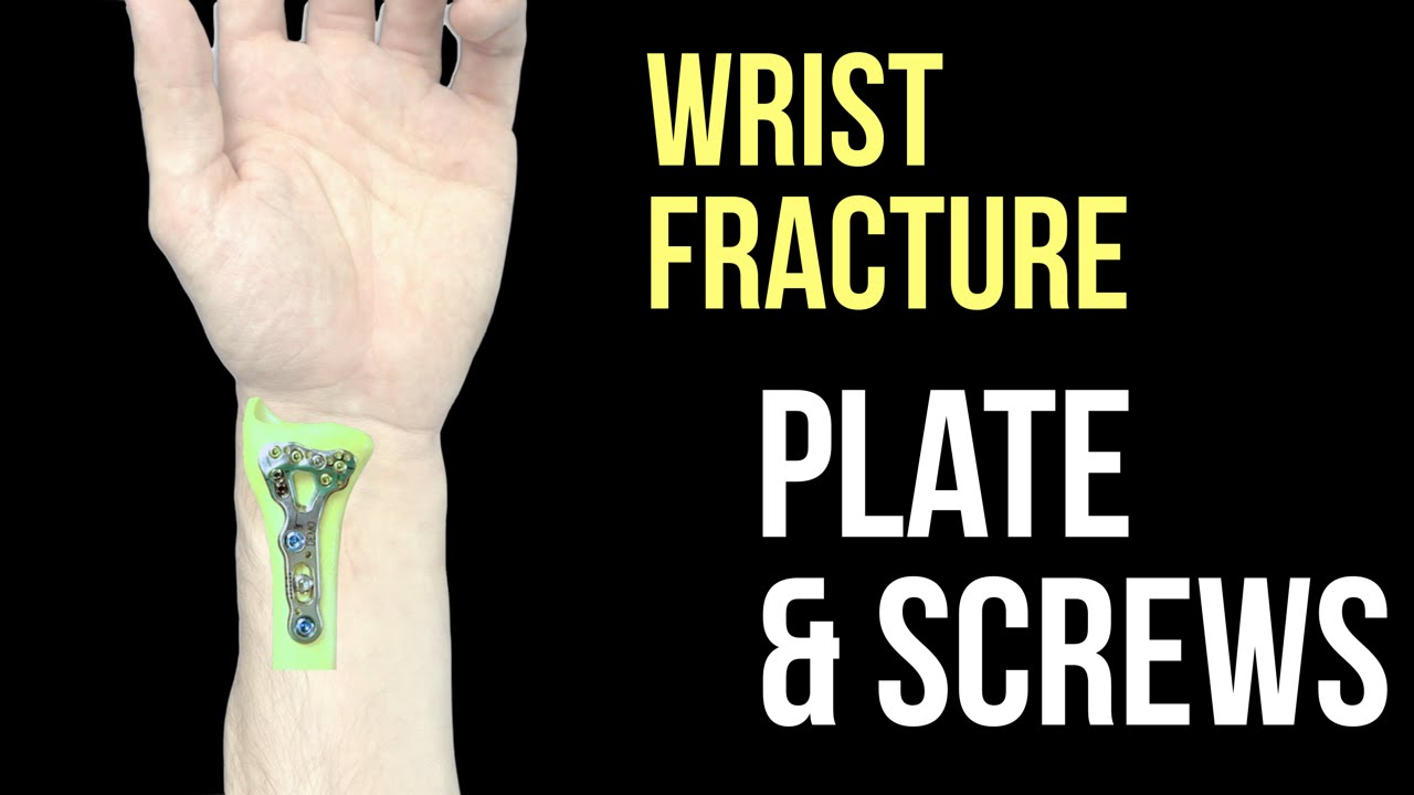 526be7eac98 Broken Wrist - Plate and Screws - YouTube