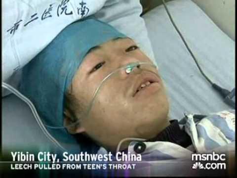 Một thanh niên bị đỉa chui vào cổ họng hút máu ở Trung Quốc