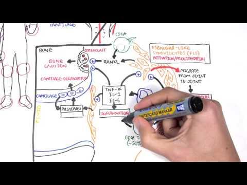 Rheumatoid Arthritis Pathophysiology (signs and symptoms)