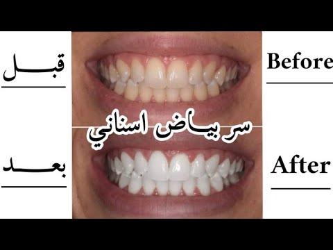 Download سر بياض أسناني والوصفة لي مانستغناش عليها منذ 4 سنين كذلك تقضي على رائحة الفم