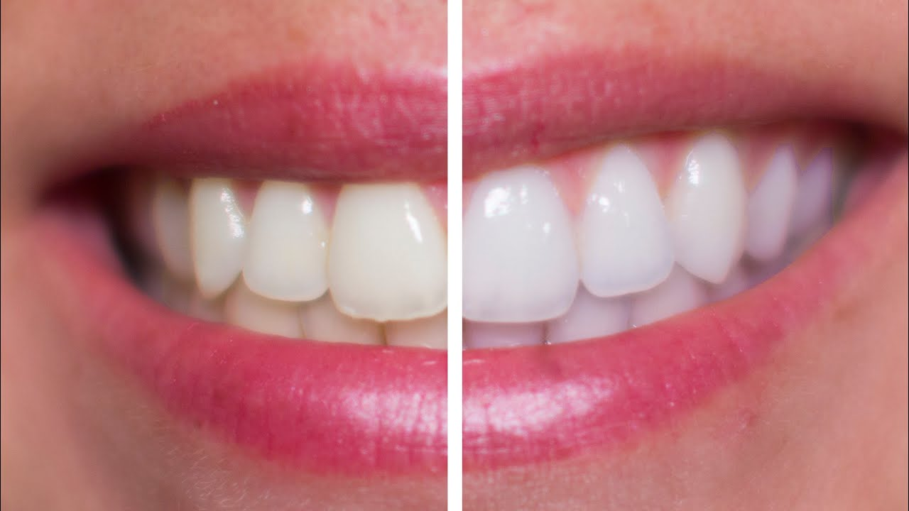 How Can I Get White Teeth Naturally