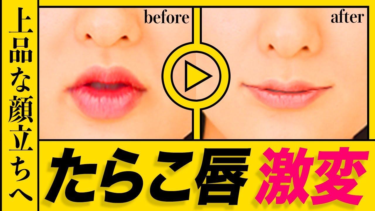 【整形級】たらこ唇を激的に薄くする!唇美人になる方法!