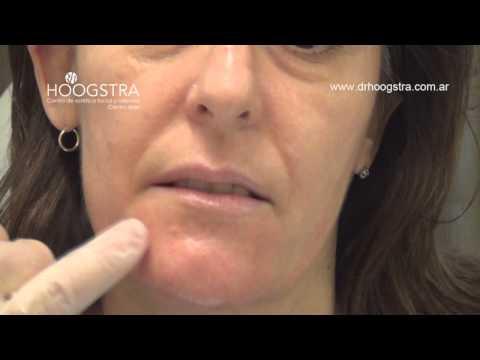 Surcos Naso Labiales
