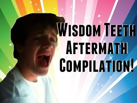 Wisdom Teeth Aftermath: After Wisdom Teeth Removal Dentist Compilation Hilarious