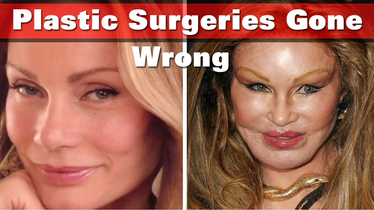 celebrities plastic surgeries gone wrong :: models || fasion