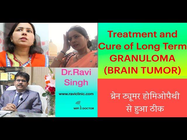 Treatment and Cure of long Term Granuloma ( Brain Tumor) Dr.Ravi Singh