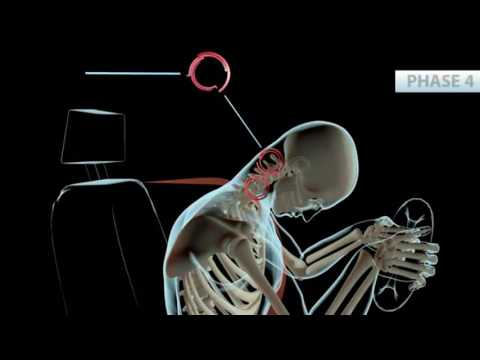 Phoenix Chiropractor | Whiplash Accident Symptoms | Personal Injury Doctor