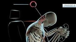 Phoenix Chiropractor   Whiplash Accident Symptoms   Personal Injury Doctor