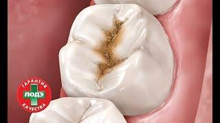 стоматология ЛОДЭ: Удаление кариеса и восстановление зуба