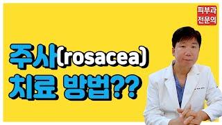 주사(rosacea) - 주사치료 방법은?[명동고운세상…