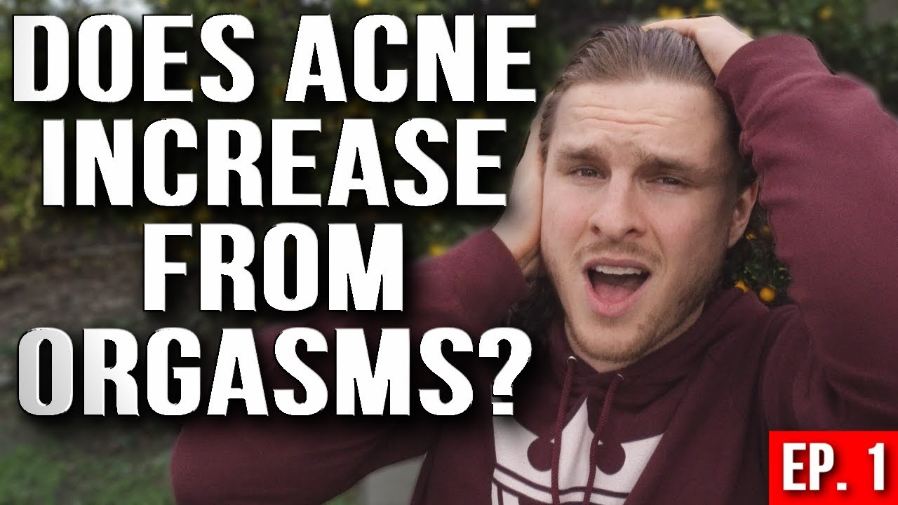 Think, that acne and masturbation join. happens