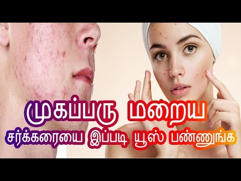 PIMPLE REMOVAL ON FACE AT HOME IN TAMIL BEAUTY TIPS - PIMPLE TREATMENT - முகப்பரு மறைய  -HOME REMEDY