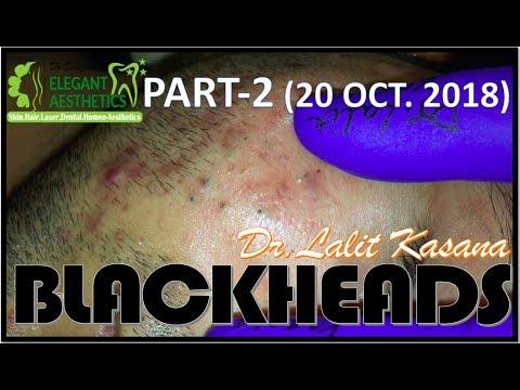 BLACKHEADS REMOVAL PART-2( 20-10-2018) BY DR LALIT KASANA