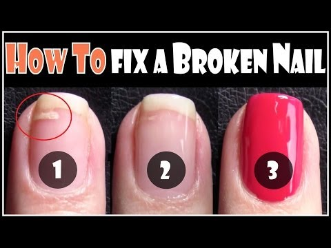 How to Fix a Broken Nail| Repair your Split Nails Step by Step ...