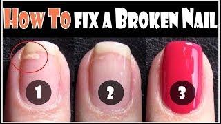 How Fix Broken Nail