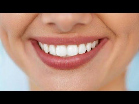 Как держаться вставные челюсти