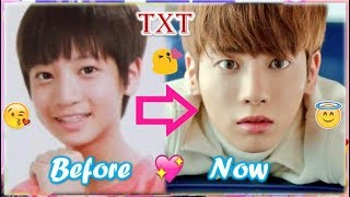 TXT TAEHYUN - Predebut Vs Now : Before and Now