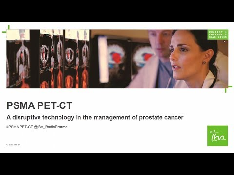 PSMA PET-CT: A disruptive technology in the management of prostate cancer