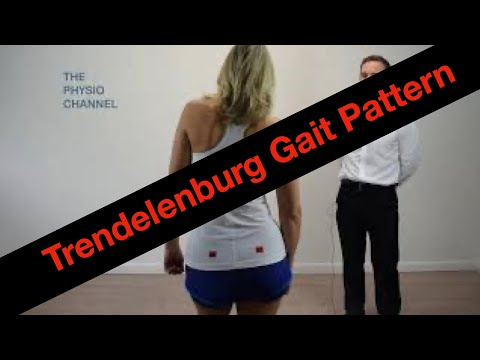 Trendelenburg Gait Pattern Example