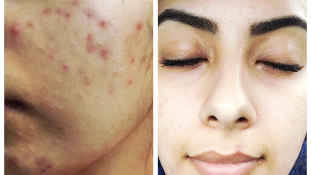 My Acne Journey Doxycycline Youtube
