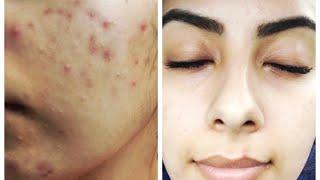 My acne journey | Doxycycline