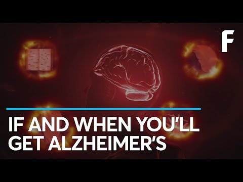 The Most Valuable Alzheimer's Test Created So Far