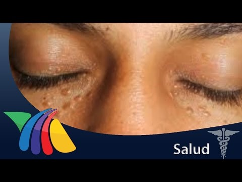 How To Get Rid Of Syringoma Naturally