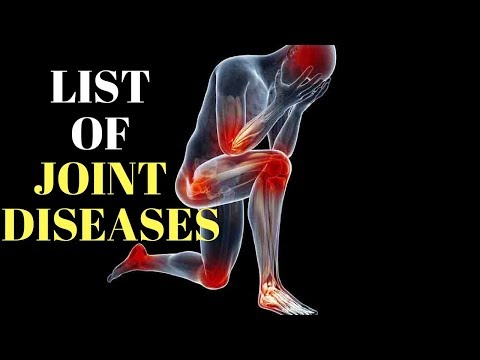List Of Joint Diseases Perpetuated By Allopathic Treatments