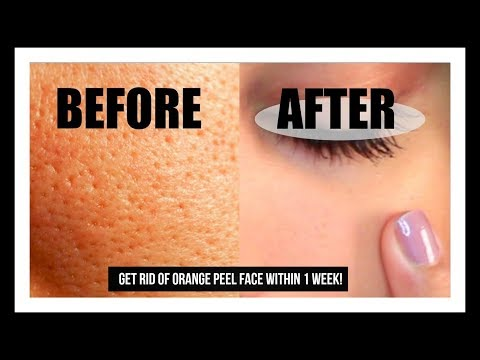 How to get rid of Orange peel Skin