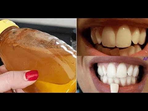 Ongebruikt Zelf natuurlijk je tanden bleken, een goed idee?, tanden bleken BS-72