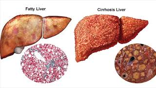Main Causes Of Cirrhosis Of The Liver- Symptoms- Health Tips