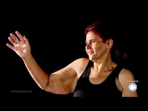 Ex-obesa Ganha Cirurgia Para Retirada De Excesso De Pele