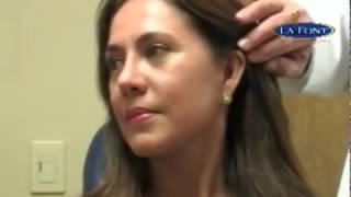 Estiramiento Facial en Mujeres, Face lift in women, Bogotá - Colombia