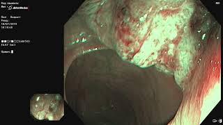Плоскоклеточный рак анального канала