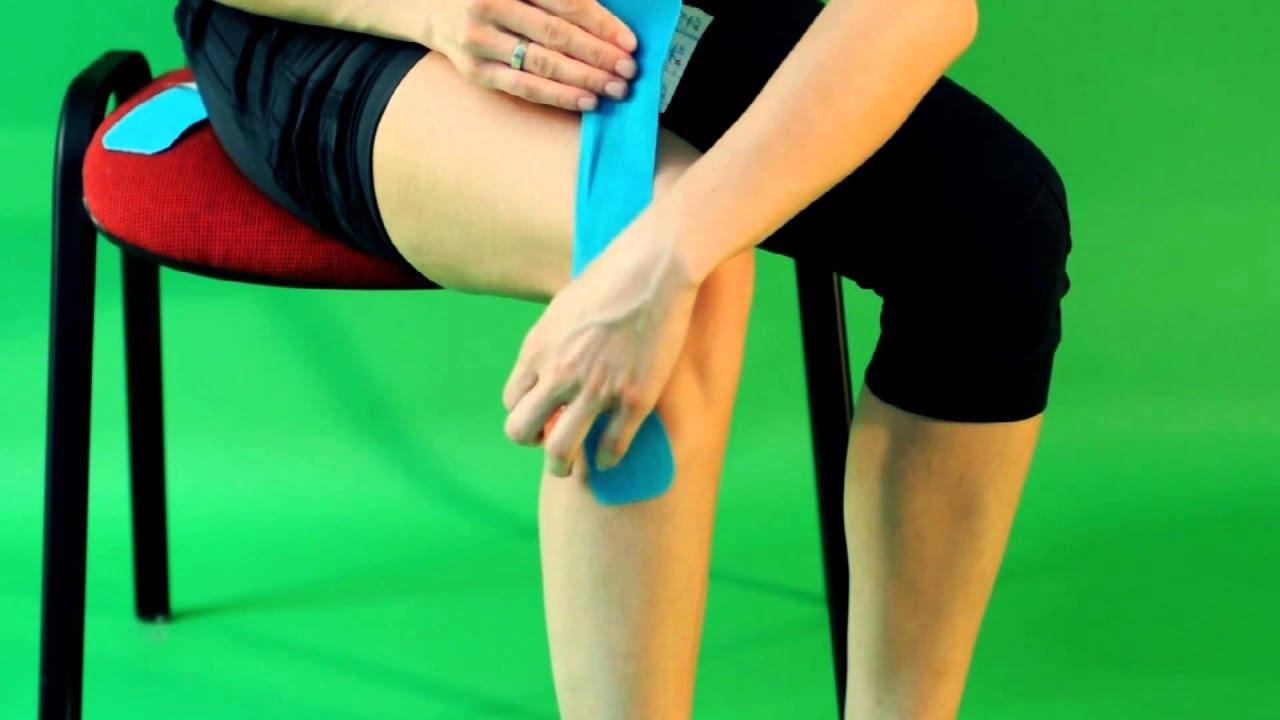 тейпирование колена при растяжении