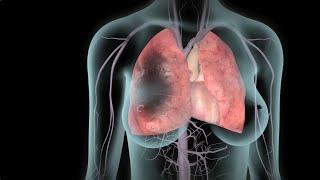 Em trombos de enfermagem formação de risco diagnóstico para fatores de