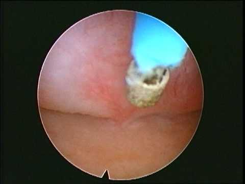 Vídeo Endometriose exame