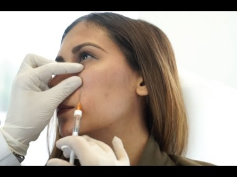 Download Tear Trough Treatment with Restylane Filler by Dr. David Amron