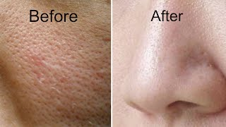 how to get rid of large pores in 3 days   get smooth fairer and tighter skin