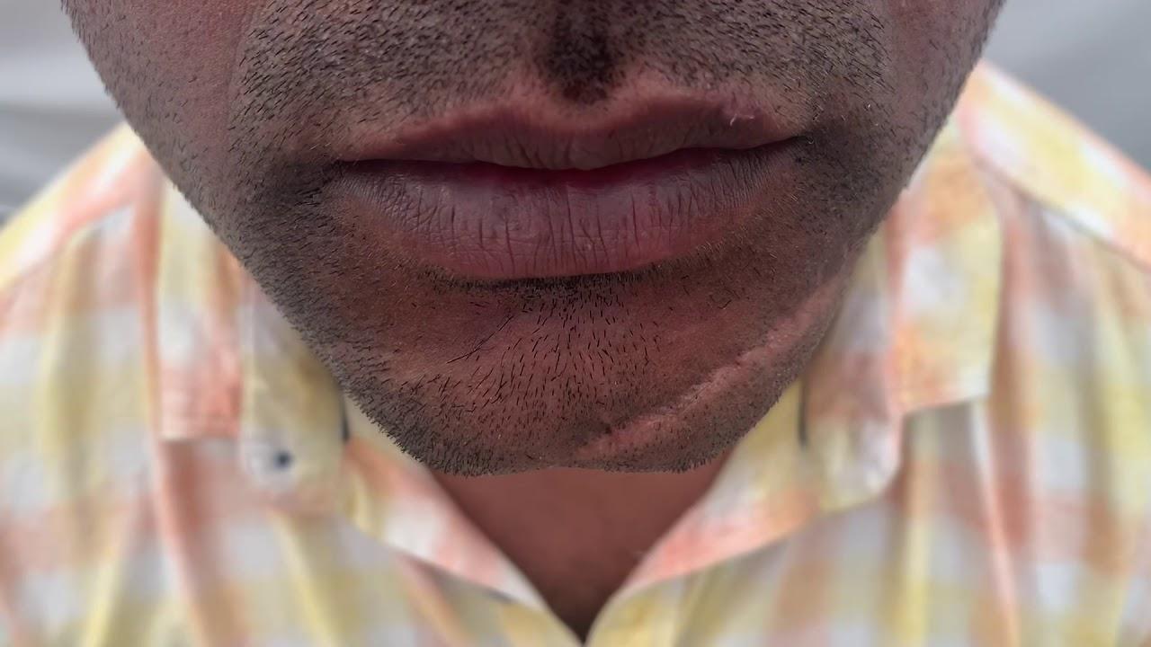 orlando-facial-scar-revision
