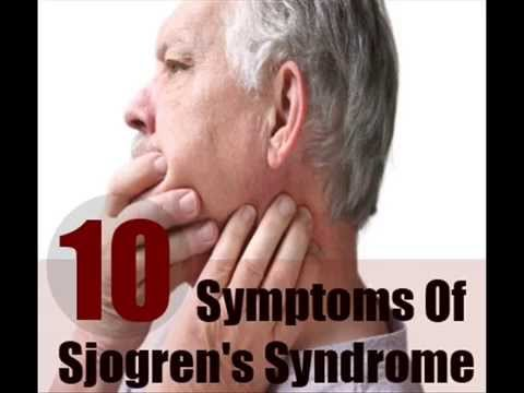 10 Major Symptoms Of Sjogren's Syndrome