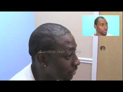 FUE hair transplant on African American Male